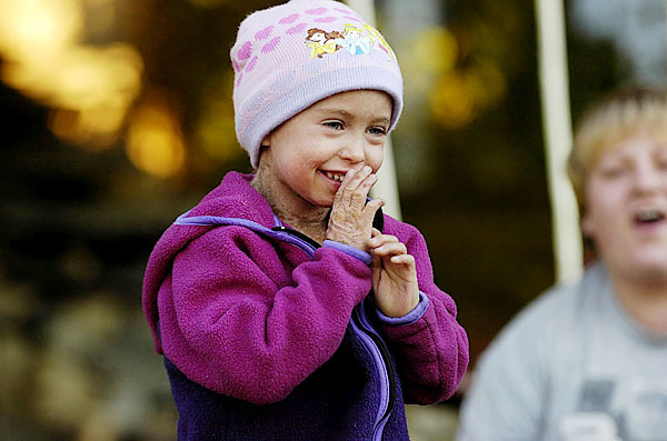 Chloe Creehan, left, laughs at the antics of her cousin, not pictured, along with her aunt, Danielle Day, right, as they play the Creehan's grandparents yard in East Millinocket on Monday, September 22, 2008. Creehan has a rare skin disorder known as Ichthyosis.  Buy Photo