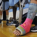 UMaine's Burns out for season with knee injury