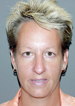 Patricia Barnhart