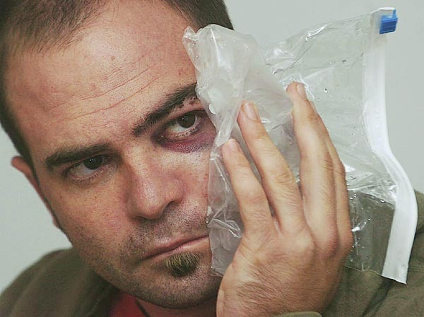 Tim Wild, an employee at the Jordan Pond House in Acadia National park, holds an ice bag to his injured face Tuesday, Aug. 19, 2008.  Wild said he was assaulted by a ranger while hiking in the park with a large group of friends and co-workers early Monday.  (BANGOR DAILY NEWS PHOTO BY KATE COLLINS)  CAPTION  Tim Wild holds ice to his fractured face on Tuesday, August 19, 2008.  Wild, who is employed at the Jordan Pond House in Acadia National Park, was hiking in the park with a large group of friends when he was involved in an altercation with park rangers.  In addition to sustaining several facial fractures, Wild also suffered a concussion and an injured shoulder.  (Bangor Daily News/Kate Collins)