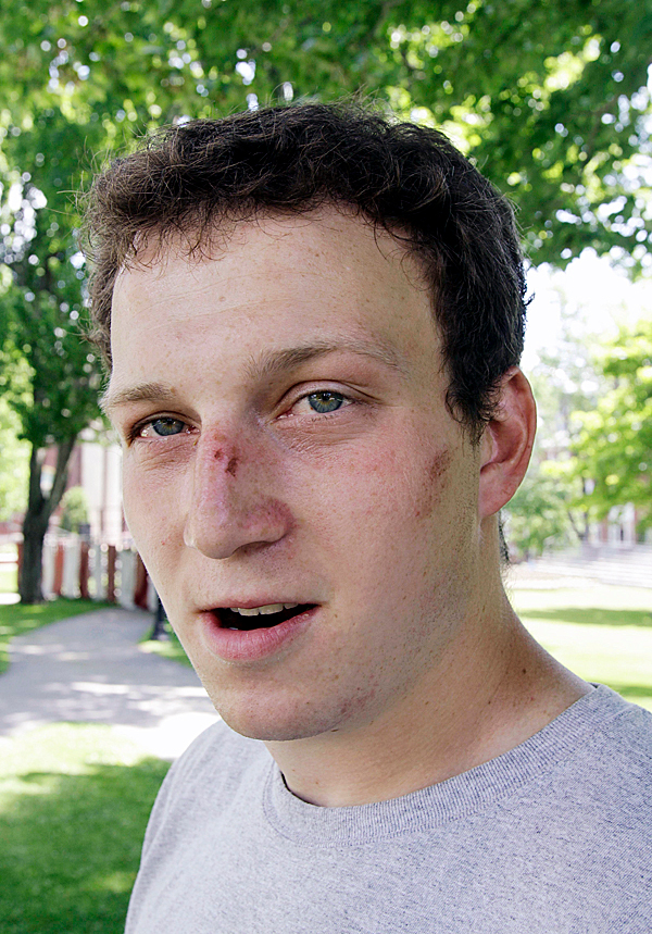 Paul Chiampa, of Pembroke, Mass., shows off some of the bruises on his face that he claims Lewiston police officers caused, at Bates College in Lewiston, Maine on Wednesday, May 26, 2010.   An incident involving students being arrested occurred the night before, where some students claim they were injured by police actions. ( AP Photo/Pat Wellenbach)