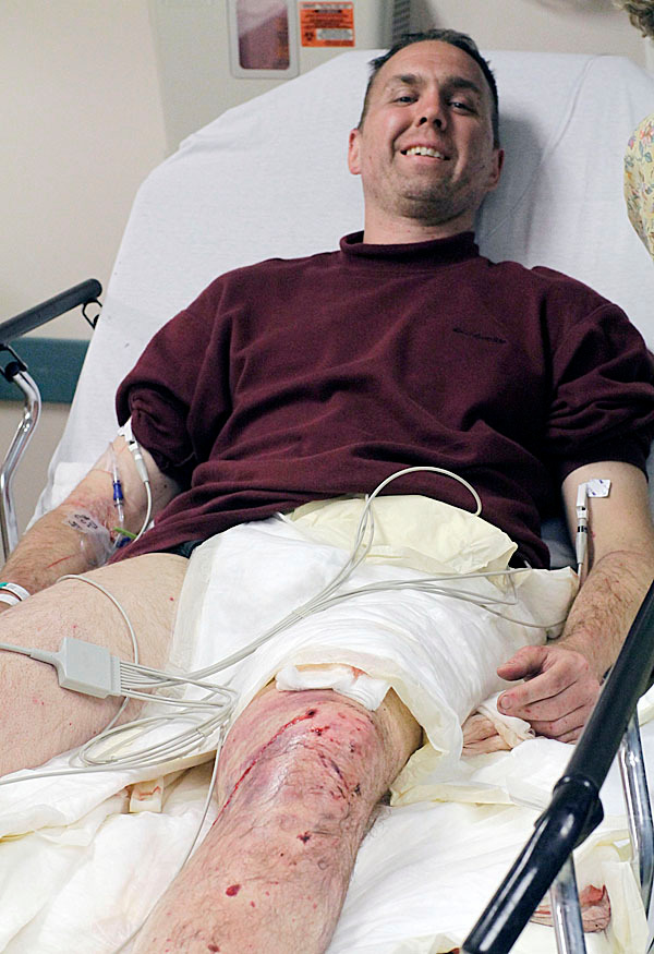 Covered in insect bites and with a crushed kneecap  hiker Mike Hays, 41, says he's glad to be alive. Speaking from his hospital bed  in Millinocket Regional Hospital, Millinocket, Maine, Monday, May 31, 2010, Hays said he 'made several stupid mistakes and credits the Baxter Park rangers with getting him out alive. (AP Photo/Michael C. York)