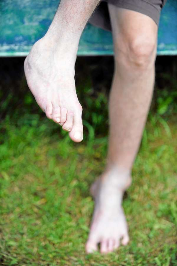 Sitting in his backyard in Unity, Dan Currit II shows his disfigured ankles which were shattered during his fateful leap at the Mount Waldo Quarry in 2001. He suffered numerous injuries including a broken back and shattered ankles. (Bangor Daily News/John Clarke Russ)