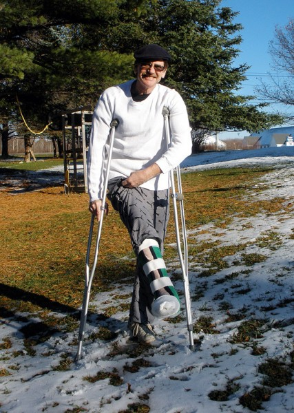 News photos by Joni Averill Tim Higgins displays the leg that many surgeries will enable him to keep his foot attached to his leg after he crushed his ankle when he fell from the tree house he was building for his children.