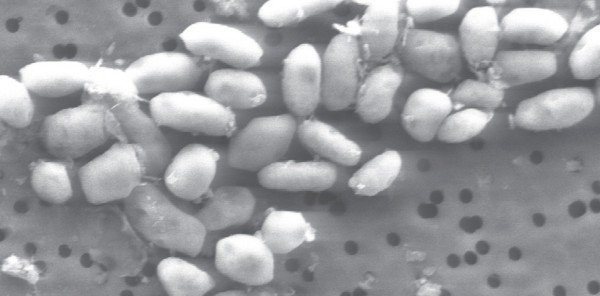 This undated black-and-white handout image provided by the journal Science shows a scanning electron micrograph of strain GFAJ-1. The discovery of a strange bacteria that can use arsenic as one of its nutrients widens the scope for finding new forms of life on Earth and possibly beyond. While researchers discovered the unusual bacteria here on Earth, they say it shows that life has possibilities beyond the major elements that have been considered essential. (AP Photo/Science)