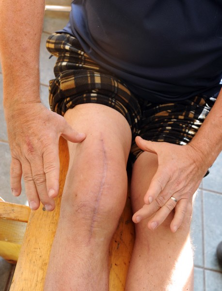Norm Pacholski of Hermon shows the extent of the swelling in his right knee after he developed an MRSA infection.