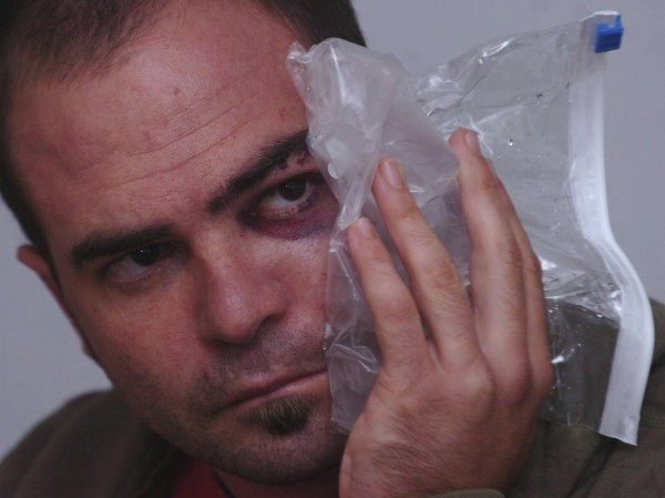 Tim Wild holds ice to his fractured face in August 2008. Wild suffered injuries after an altercation with Acadia Park rangers in August 2008.The park has been ordered by a federal judge to release documents as a result of a Freedom of Information Act lawsuit brought by Wild.