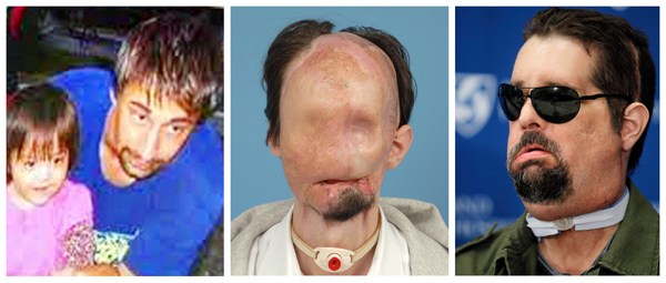 This three-photo combination shows Dallas Wiens, the recipient of the first full face transplant in the United States. On the left, a 2008 Wiens family photo provided by Brigham and Women's Hospital, shows Wiens with his daughter Scarlette prior to an electrical accident that disfigured his face; center, a December 2010 file photo provided by Parkland Health and Hospital System in Dallas, and released by Brigham and Women's Hospital in Boston, shows Wiens prior to receiving a full face transplant during the week of March 14, 2011; and right, shows Wiens as he takes questions from members of the media during a news conference at Brigham And Women's Hospital, in Boston, Monday, May 9, 2011.