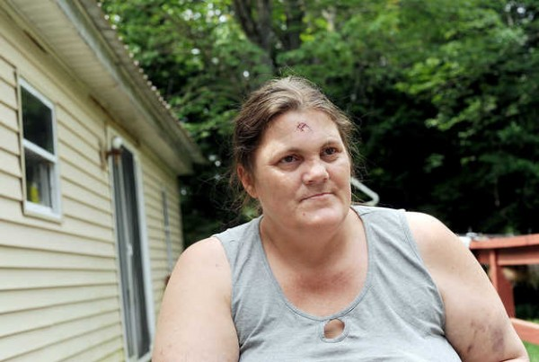 Dot Bailey of Livermore Falls has bruises on her arm and a head wound that required nine stitches after being pistol-whipped during a home invasion on Monday.