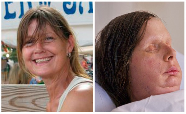 Undated photos provided Thursday, Aug. 11, 2011 by the Nash family and Brigham and Women's Hospital show chimpanzee attack victim Charla Nash before she was attacked by a chimpanzee and a recent photo release by the hospital Thursday Aug. 11, 2011 showing Nash after face transplant surgery, right.