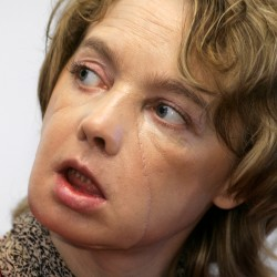 US full face transplant patient makes appearance