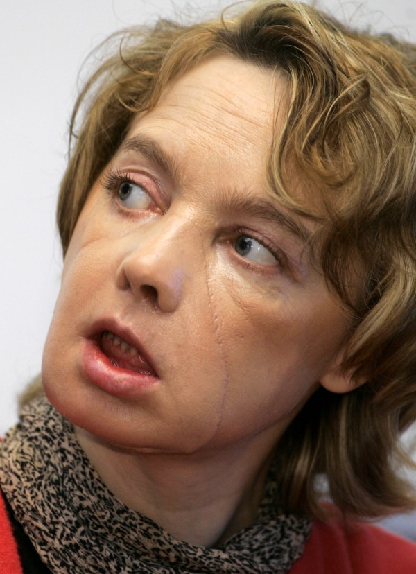 Isabelle Dinoire, the woman who received the world's first partial face transplant with a new nose, chin and mouth in a  transplant operation on Nov. 27, 2005,  addresses the media in Amiens France.