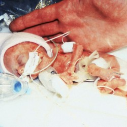 One of tiniest babies on record, at 9.6 ounces, expected to go home