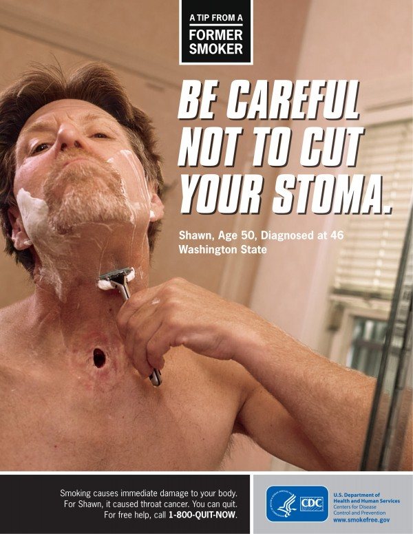 This image provided on Wednesday, March 14, 2012 by the Centers for Disease Control shows Shawn Wright, who had a tracheotomy after being diagnosed with head and neck cancer. Tobacco taxes and smoking bans haven't budged the U.S. smoking rate in years. Now the government is trying to shock smokers into quitting with a graphic nationwide advertising campaign.