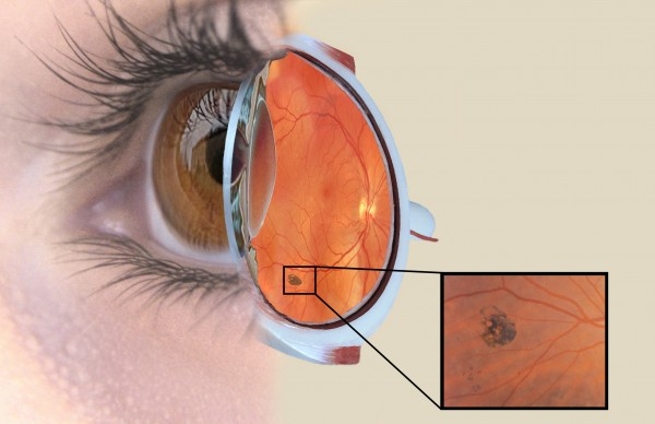 This composite drawing shows a freckle on the retina of a patient with colon polyp syndrome.