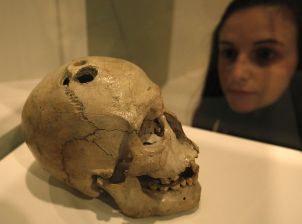 A Bronze Age skull from Jericho in the West Bank that shows four holes made by the ancient surgical process of trephination carried out to treat a range of medical conditions, some of which were believed to have been caused by evil spirits, is on display at the exhibition 'Brains -The Mind as Matter' at the Wellcome Collection in London, Tuesday, March 27, 2012.