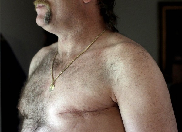 A surgery scar is seen on breast cancer survivor Robert Kaitz's left breast in his home in Severna Park, Md., on May 3, 2012