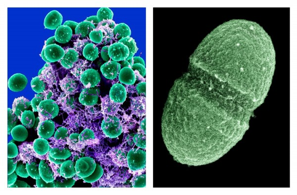 At left, an undated handout image provided by the National Institute of Allergy and Infectious Diseases (NIAID) shows  a clump of Staphylococcus epidermidis bacteria (green) in the extracellular matrix, which connects cells and tissue, taken with a scanning electron microscope, showing. At right, an undated handout image provided by the Agriculture  Department showing the bacterium Enterococcus faecalis, which lives in the human gut, is just one type of microbe that will be studied as part of NIH's Human Microbiome Project. They live on your skin, up your nose, in your gut -- enough bacteria, fungi and other microbes that collected together could weigh, amazingly, a few pounds.
