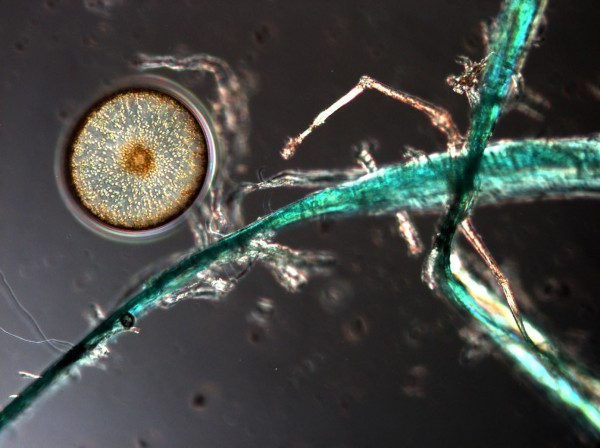 A microplastic strand, probably from a fishing line, is seen next to a phytoplankton, which forms the bottom of the marine food chain.
