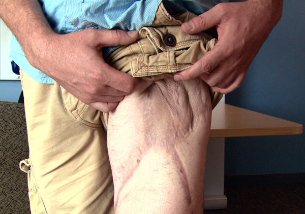 In this July 9, 2012 image made from video, Marine Sgt. Ron Strang shows his injured leg at the University of Pittsburgh Medical Center in Pittsburgh, Pa. He lost half of his thigh muscle from shrapnel in a bomb blast in Afghanistan, and with an experimental implant of connective tissue developed from pigs, it has had it strengthened. &quotIt's been a huge improvement,&quot he says.