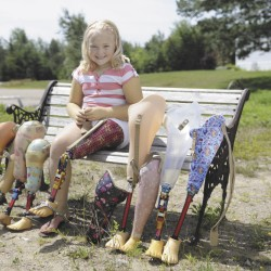 Mariah Ross leads an active life with prosthetic leg provided by Shrine hospital