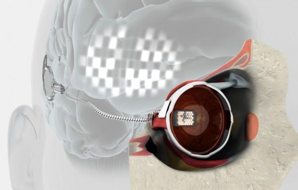 An early bionic eye prototype drawing.