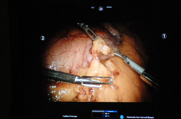 A photo of the television screen in the operating room where Dr. Michelle Toder performs a robotic sleeve gastrectomy, removing 85 percent of the stomach.