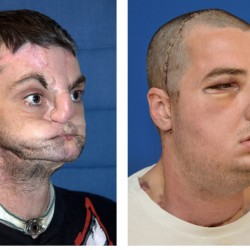 Virginia man injured in gun accident gets new face
