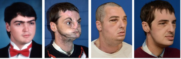 Richard Norris, who was injured in a gun accident, underwent the most extensive face transplant in history in March 2012 and says he is finally coming out of hiding after 15 years of living as a recluse. Photos, from left, show Norris in high school, soon after his accident, six days after his face transplant and seven months after the surgery.