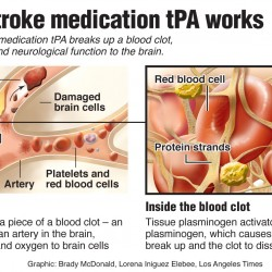 Wake-up stroke victims can receive clot-busting drugs, study says