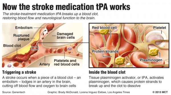 Diagram shows how the stroke treatment medication tPA breaks up a blood clot to restore blood flow and normal neurological function to the brain.