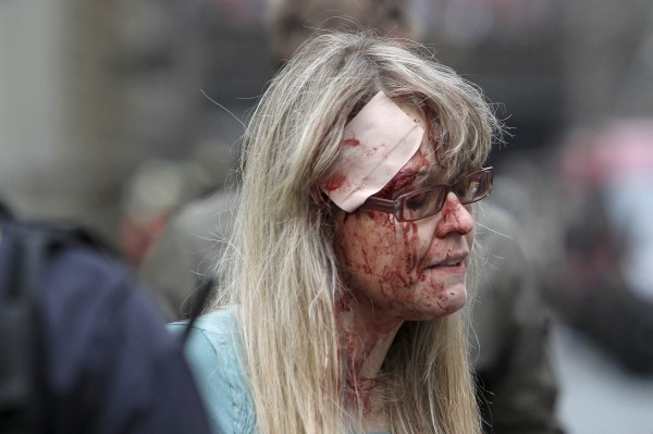 An injured woman is pictured after an explosion in Prague on Monday.