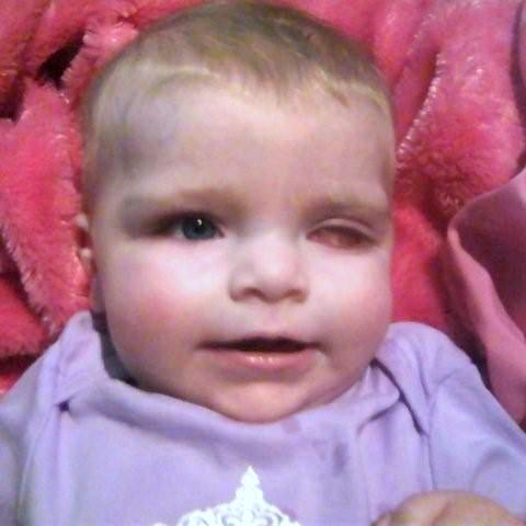 Seven-month-old Londyn Elise Porter was recently diagnosed with a rare form of eye cancer, which has claimed her left eye and has spread into her right eye and into her brain. Family in Washington County and in California say they are &quotwaiting on a miracle&quot in hopes that the infant survives.