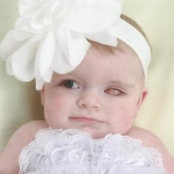 A rare form of infant cancer has claimed the left eye of Londyn Elise Porter, who at age seven months is fighting for survival after her cancer spread from her left to right eye and into her brain. Born in Maine and now living with her mother and grandmother in California, the child's medical ordeal has dominated the thoughts and prayers of family and friends on both coasts.