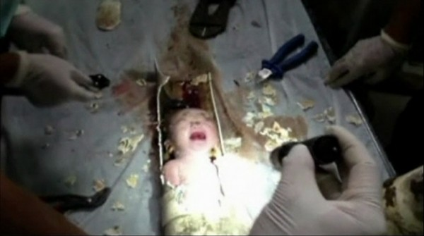 An abandoned newborn baby boy is seen in a sewage pipe following his rescue, in this still image taken from video, in Jinhua city, Zhejiang province May 25, 2013.