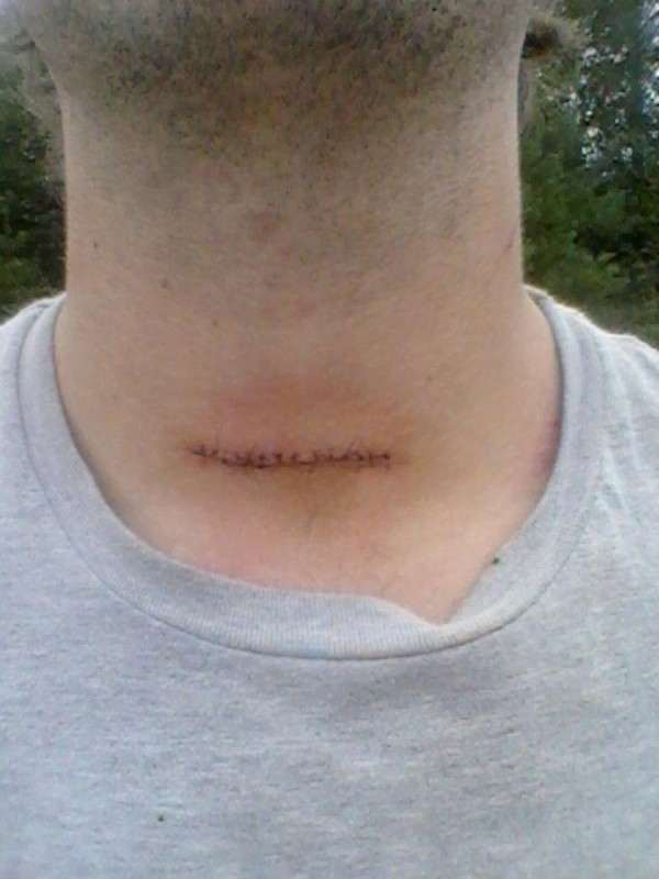 The neck wound that Searsport resident Kirt Damon Jr., 24, suffered during an incident on Sunday.
