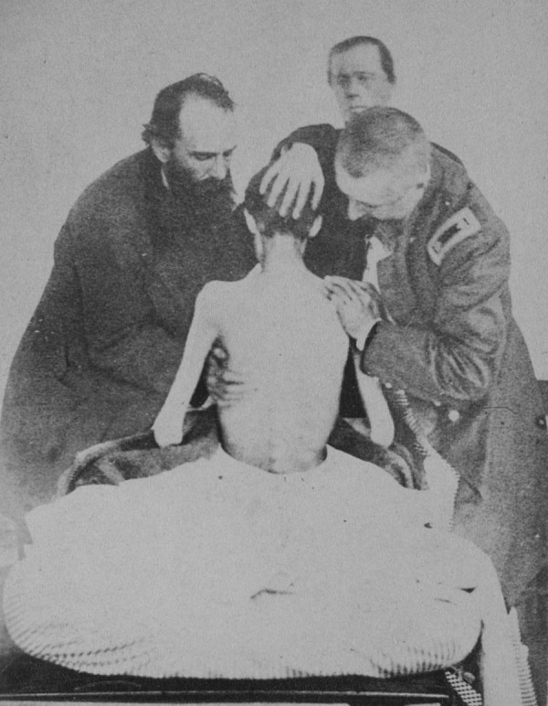 Private Isaiah G. Bowker, Co. B, 9th Maine Infantry, was released from Belle Isle Prison in Richmond, Va. on March 9, 1864. The photo shows him being examined by Army doctors. Bowker died on May 16, 1864 from his mistreatment as a prisoner of war.