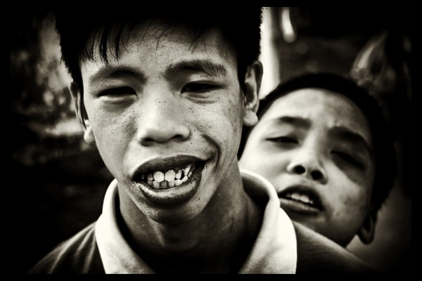 Two children suffering from the effects of Agent Orange living at Friendship Village outside of Hanoi, Vietnam.