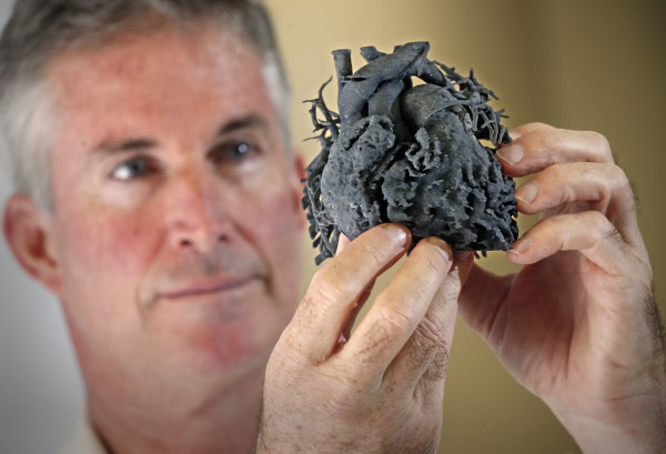 Surgeon uses 3D technology to create model heart for 4-year-old patient