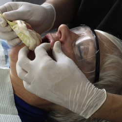 Don't neglect oral health care in frail, elderly, says study