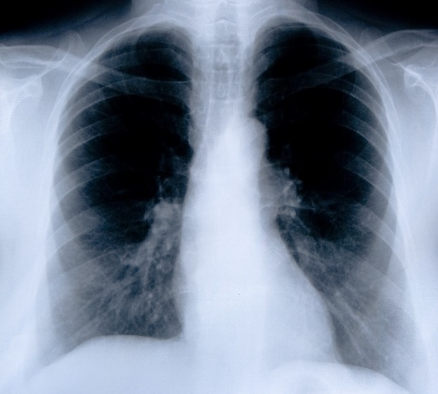 Lung cancer CT scans: just for older heavy smokers