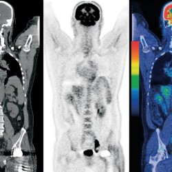 Blue Hill Memorial Hospital acquires state-of-the-art CT scanner