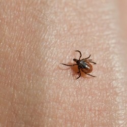 Lyme disease is transmitted by blacklegged ticks infected with the bacteria Borrelia burgdorferi.