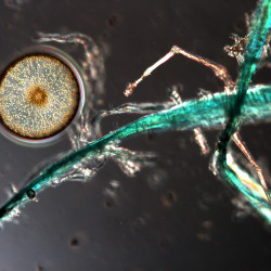 A microplastic strand, probably from a fishing line, next to a phytoplankton, which forms the bottom of the marine food chain.