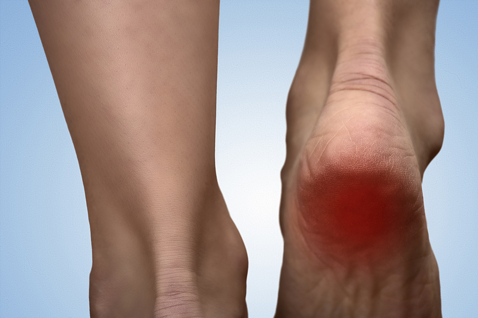 Why does my heel hurt when I get up in the morning?