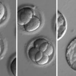 This sequence of images shows the development of embryos after being injected with biological kit to edit their DNA, removing a genetic mutation known to cause hypertrophic cardiomyopathy.
